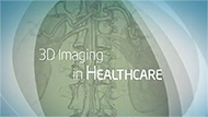 Philips Medical Video: 3D Breakthrough